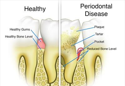 Periodontal disease infographic
