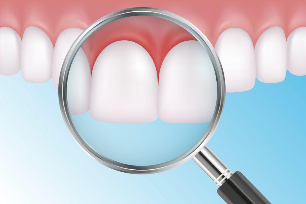 Virtual model of healthy teeth