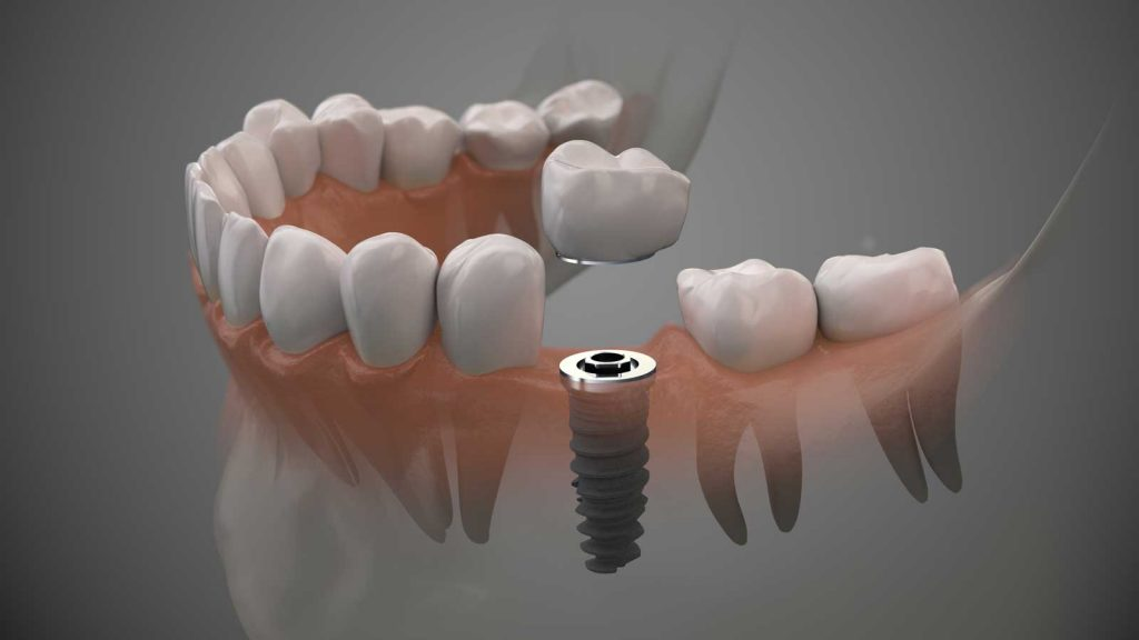 Illustration of a dental implant being placed