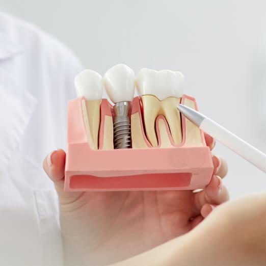 Dental implant prosthetic model